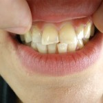 Първоначално състояние на 6-те фронтални горни зъба