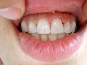 Крайният резултат = Префектна усмивка от Д-р К. Димитров