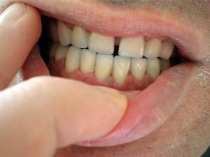 Финален резултат от лечението = Префектна усмивка от Д-р К. Димитров