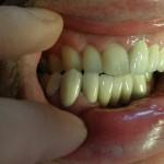 металокерамика - възстановяване след катастрофа - зъболекар Костадин Димитров