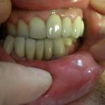 Зъболекар Костадин Димитров - възстановяване с металокерамика след катастрофа - Стоматолог Кюстендил