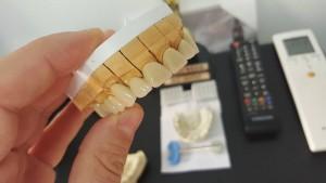 Мостова протезна консрукция с дъгова стабилизация на Горна челюст реализирана с 3D VM13 металокерамика