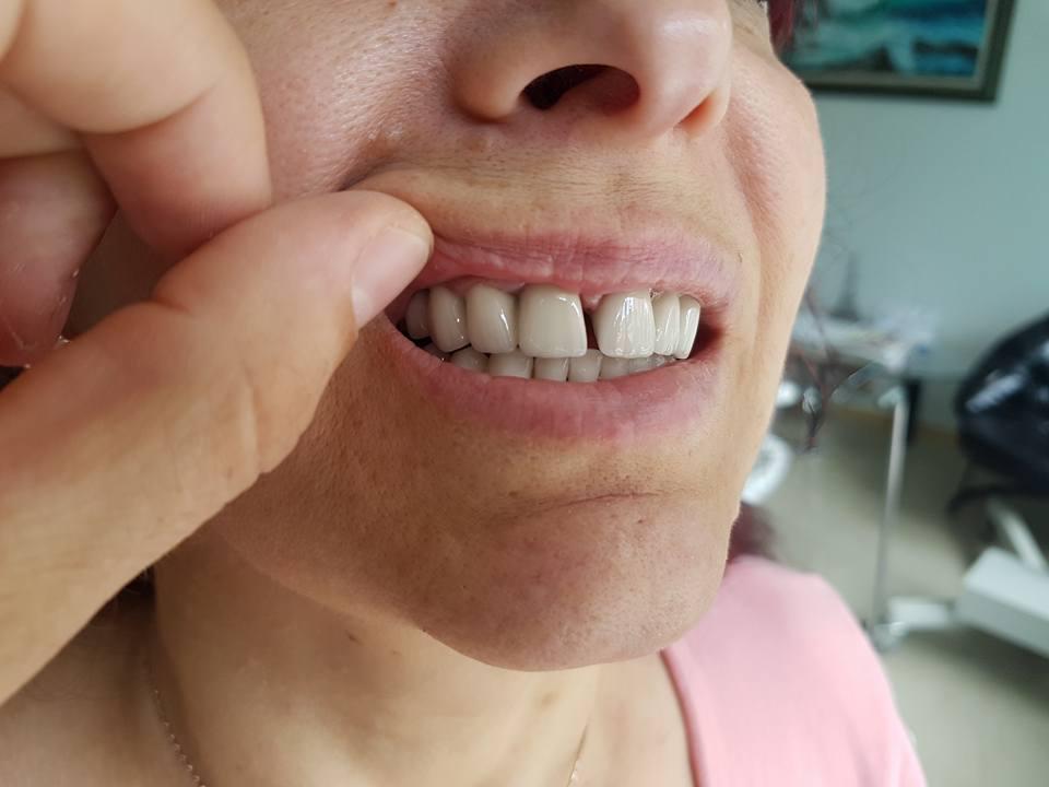 Естетична стоматология - обличане на фронтални зъби с метало керамични коронки при доктор по дентална медицина Костадин Димитров 11