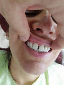 Естетична стоматология - обличане на фронтални зъби с метало керамични коронки при доктор по дентална медицина Костадин Димитров 12