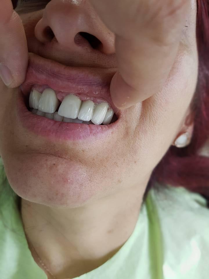 Естетична стоматология - обличане на фронтални зъби с метало керамични коронки при доктор по дентална медицина Костадин Димитров 13