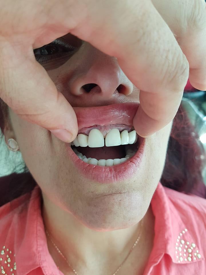 Естетична стоматология - обличане на фронтални зъби с метало керамични коронки при доктор по дентална медицина Костадин Димитров 2