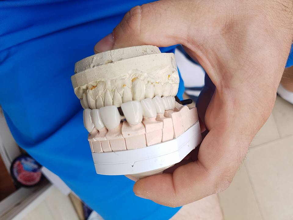 Естетична стоматология - обличане на фронтални зъби с метало керамични коронки при доктор по дентална медицина Костадин Димитров 3