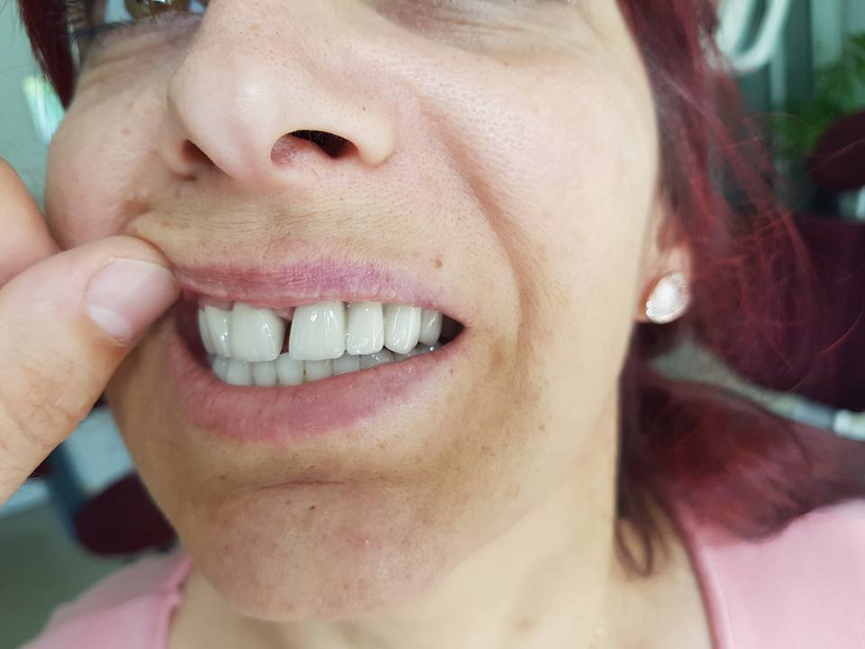 Естетична стоматология - обличане на фронтални зъби с метало керамични коронки при доктор по дентална медицина Костадин Димитров 4