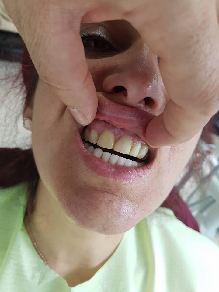 Естетична стоматология - обличане на фронтални зъби с метало керамични коронки при доктор по дентална медицина Костадин Димитров 5