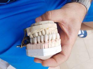 Естетична стоматология - обличане на фронтални зъби с метало керамични коронки при доктор по дентална медицина Костадин Димитров 6