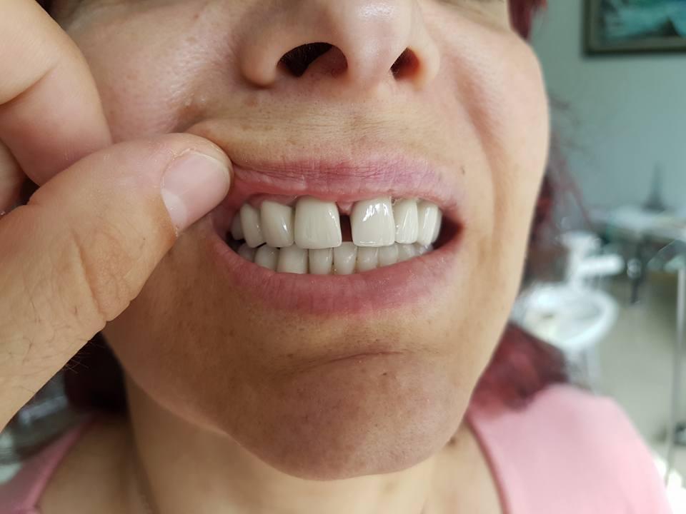Естетична стоматология - обличане на фронтални зъби с метало керамични коронки при доктор по дентална медицина Костадин Димитров 7