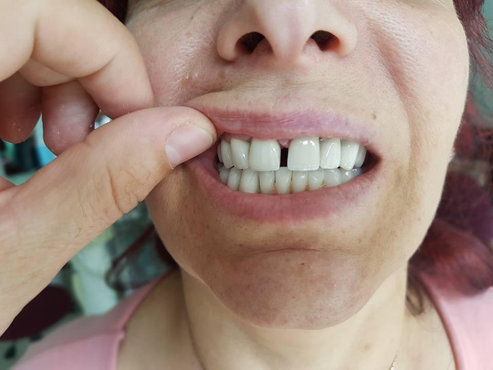 Естетична стоматология - обличане на фронтални зъби с метало керамични коронки при доктор по дентална медицина Костадин Димитров 8