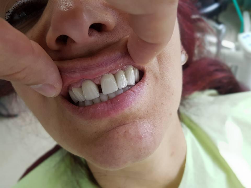 Естетична стоматология - обличане на фронтални зъби с метало керамични коронки при доктор по дентална медицина Костадин Димитров 9