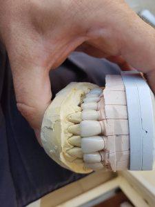 Горно челюстната 12 членна мостова конструкция с дъгова стабилизация реализирана с 3D VM13 метало керамични коронки 6
