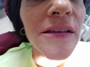Лечение на горна челюст с металокерамична конструкция на горна челюст с 2 импланта 10