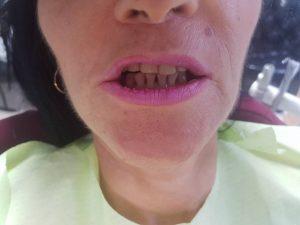 Лечение на горна челюст с металокерамична конструкция на горна челюст с 2 импланта 12