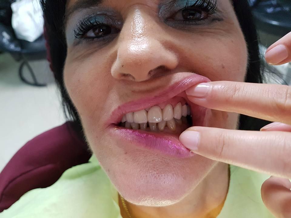Лечение на горна челюст с металокерамична конструкция на горна челюст с 2 импланта 13