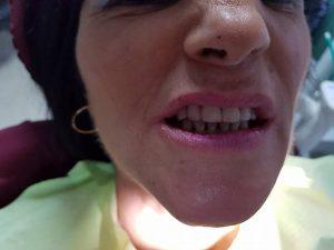 Лечение на горна челюст с металокерамична конструкция на горна челюст с 2 импланта 14