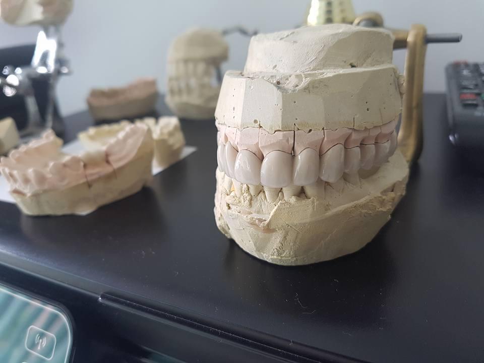 Лечение на горна челюст с металокерамична конструкция на горна челюст с 2 импланта 5