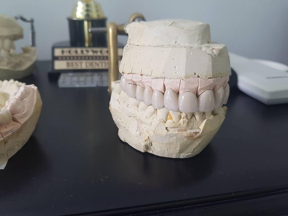 Лечение на горна челюст с металокерамична конструкция на горна челюст с 2 импланта 6