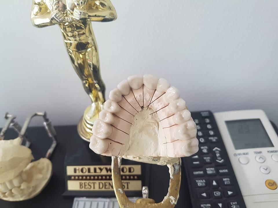 Лечение на горна челюст с металокерамична конструкция на горна челюст с 2 импланта 7