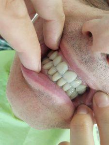 Лечение на долната зъбна редица с 4 импланта и мостова конструкция с дъгова стабилизация 10