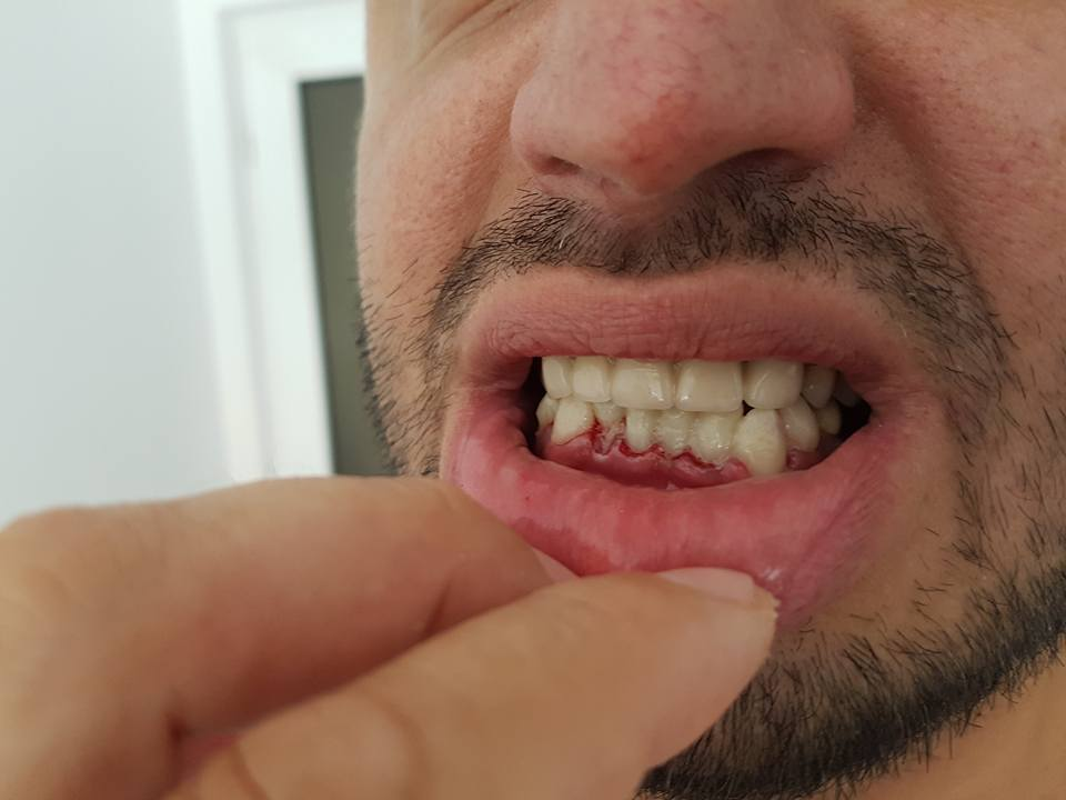 Стоматологично лечение на гингивектомия с гингивопластика и поставяне на корони на предни долни зъби 3