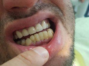 Стоматологично лечение на гингивектомия с гингивопластика и поставяне на корони на предни долни зъби 5