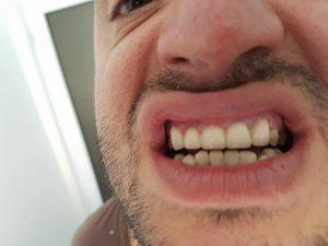 Стоматологично лечение на гингивектомия с гингивопластика и поставяне на корони на предни долни зъби 6