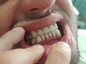 Стоматологично лечение на гингивектомия с гингивопластика и поставяне на корони на предни долни зъби 9