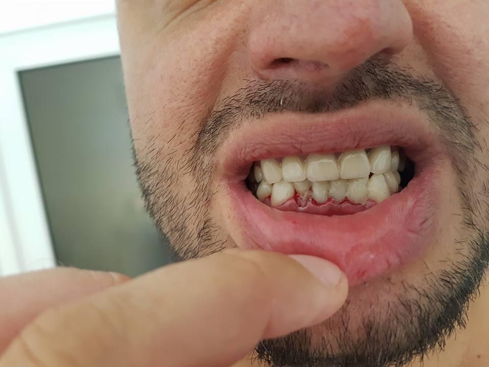 Стоматологично лечение на гингивектомия с гингивопластика и поставяне на корони на предни долни зъби