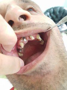 Стоматологично лечение с цел поставяне на 28 металокерамични 3D корони и 5 импланта