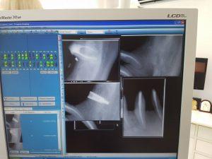 Стоматологично лечение с цел поставяне на 28 металокерамични 3D корони и 5 импланта 4
