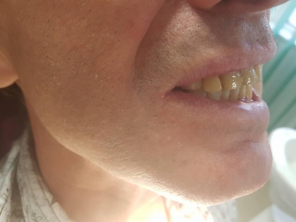 3D блоккорони във фронта с фрезпротеза при двустранно дистално неограничен дефект на горна челюст 1