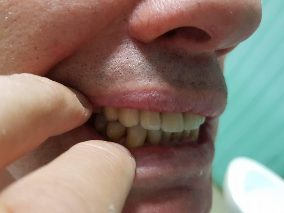 3D блоккорони във фронта с фрезпротеза при двустранно дистално неограничен дефект на горна челюст 10
