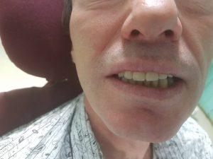 3D блоккорони във фронта с фрезпротеза при двустранно дистално неограничен дефект на горна челюст 11