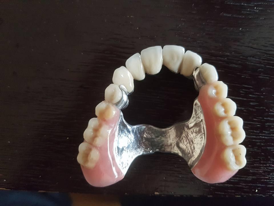 3D блоккорони във фронта с фрезпротеза при двустранно дистално неограничен дефект на горна челюст 5