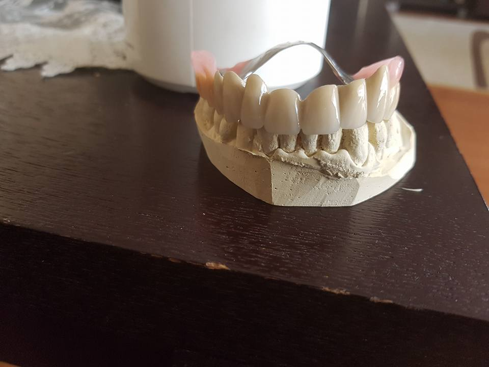 3D блоккорони във фронта с фрезпротеза при двустранно дистално неограничен дефект на горна челюст 6