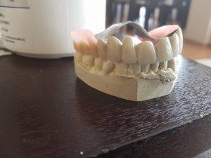 3D блоккорони във фронта с фрезпротеза при двустранно дистално неограничен дефект на горна челюст 7