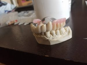 3D блоккорони във фронта с фрезпротеза при двустранно дистално неограничен дефект на горна челюст 8