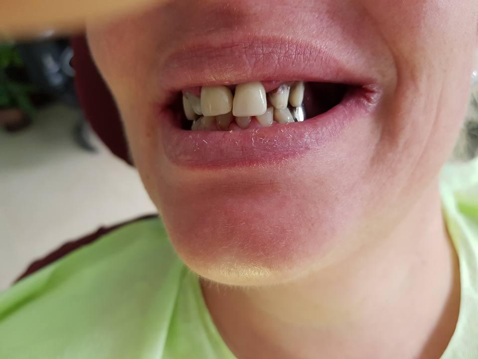 Лечение на двустранно дистално неограничени дефекти на двете зъбни редици с помощта на блоккорони от 3D VM13-металокерамика и фрезпротези