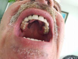 Стоматологично лечение на дистално двустранно неограничени дефекти в горна зъбна редица с металокерамичен мост и фрезпротеза 10