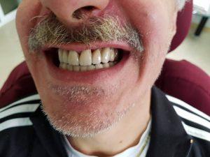 Стоматологично лечение на дистално двустранно неограничени дефекти в горна зъбна редица с металокерамичен мост и фрезпротеза 12