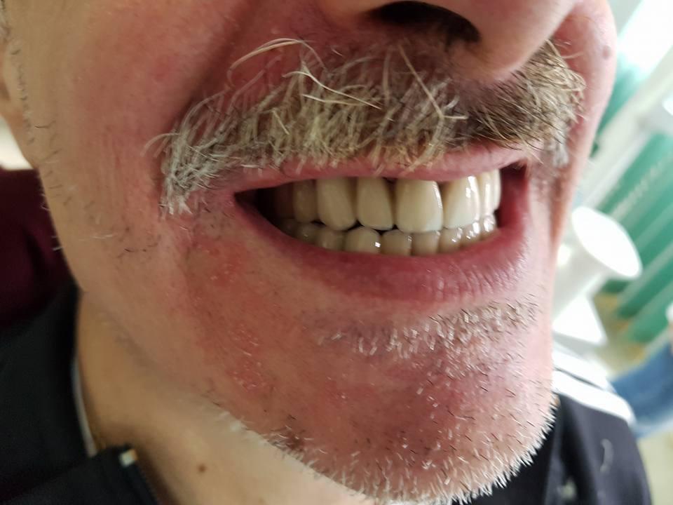 Стоматологично лечение на дистално двустранно неограничени дефекти в горна зъбна редица с металокерамичен мост и фрезпротеза 13