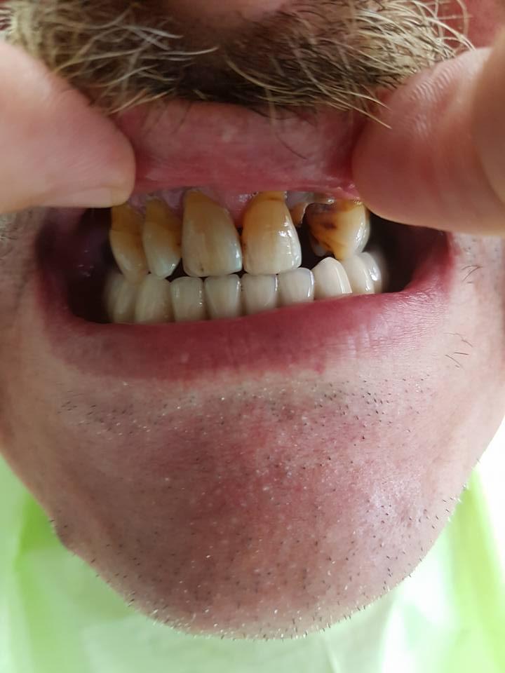 Стоматологично лечение на дистално двустранно неограничени дефекти в горна зъбна редица с металокерамичен мост и фрезпротеза 2