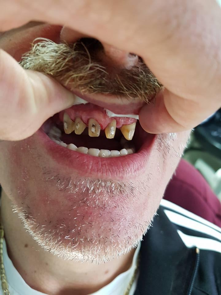 Стоматологично лечение на дистално двустранно неограничени дефекти в горна зъбна редица с металокерамичен мост и фрезпротеза 3