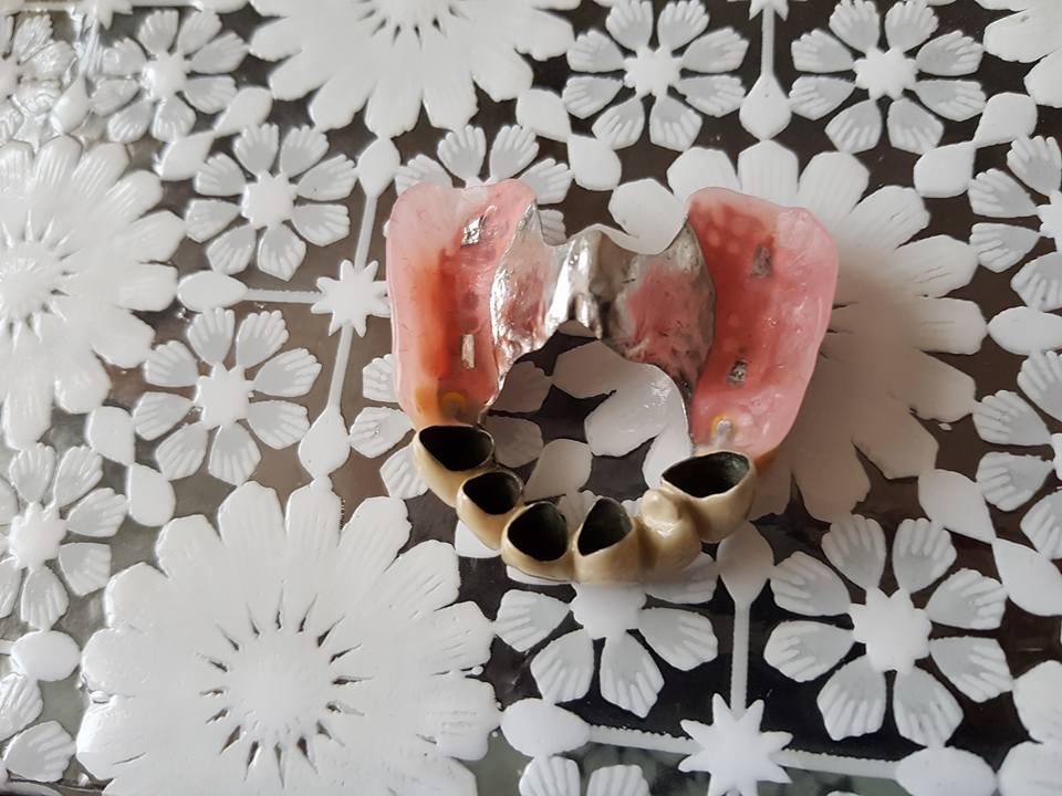 Стоматологично лечение на дистално двустранно неограничени дефекти в горна зъбна редица с металокерамичен мост и фрезпротеза 5
