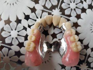Стоматологично лечение на дистално двустранно неограничени дефекти в горна зъбна редица с металокерамичен мост и фрезпротеза 6