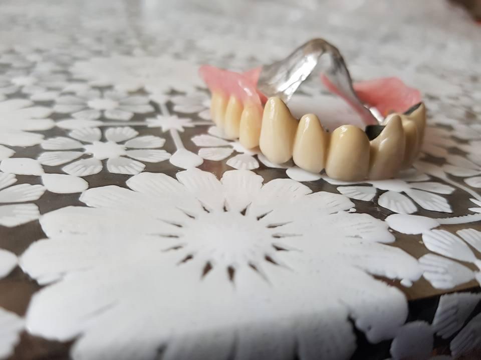 Стоматологично лечение на дистално двустранно неограничени дефекти в горна зъбна редица с металокерамичен мост и фрезпротеза 7