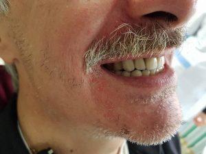 Стоматологично лечение на дистално двустранно неограничени дефекти в горна зъбна редица с металокерамичен мост и фрезпротеза 8